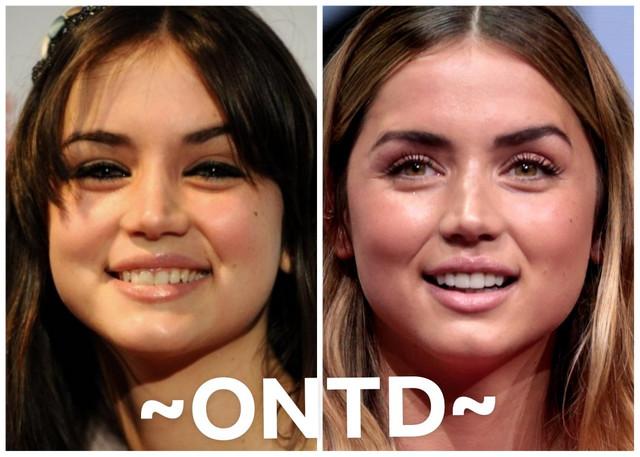 Ana de Armas Lips Plastic Surgery