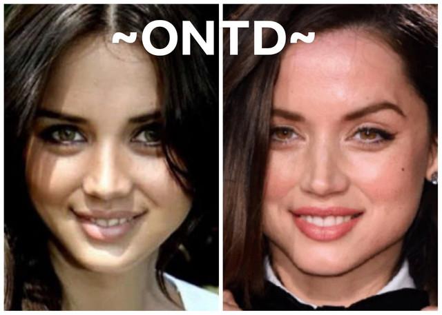 Ana de Armas Nose Job Plastic Surgery