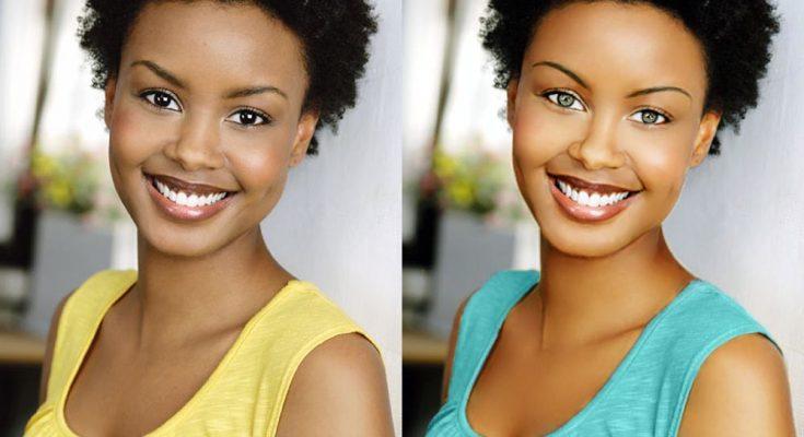 Andrea Bordeaux Plastic Surgery Nose Job Boob Job Botox Lips