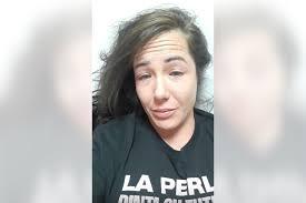 Angela Magaña Botox Plastic Surgery