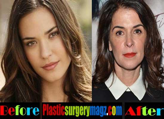 Annabella Sciorra Nose Job Plastic Surgery