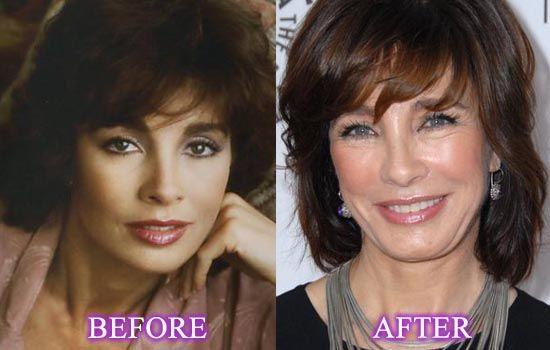 Anne Archer Nose Job Plastic Surgery