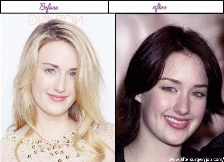 Ashley Johnson Nose Job Plastic Surgery