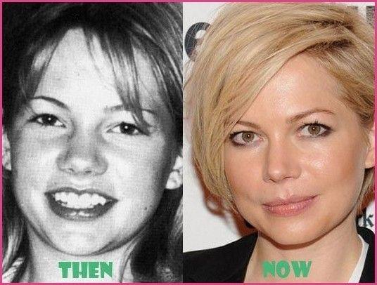 Ashley Williams Nose Job Plastic Surgery