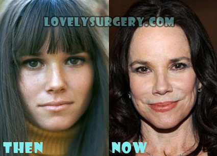 Barbara Hershey Nose Job Plastic Surgery