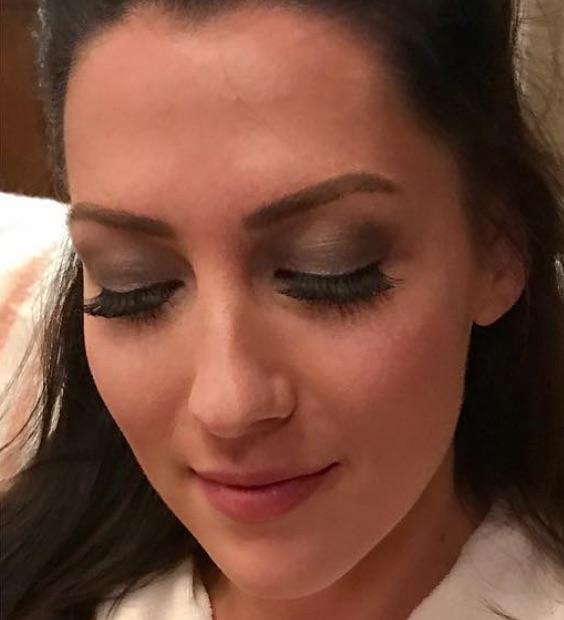 Becca Kufrin Lips Plastic Surgery