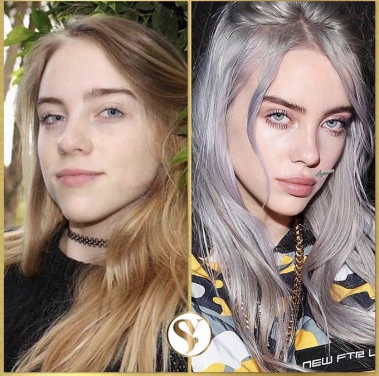 Billie Eilish Lips Plastic Surgery