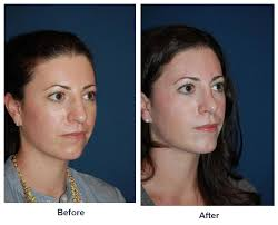 Charlotte Best Nose Job Plastic Surgery