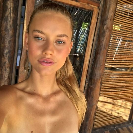 Chase Carter Lips Plastic Surgery