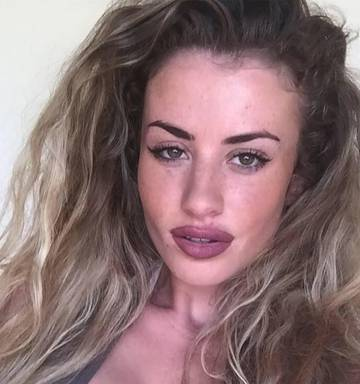 Chloe Ayling Lips Plastic Surgery