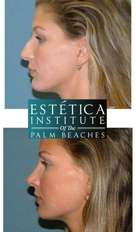 Christina Ochoa Nose Job Plastic Surgery