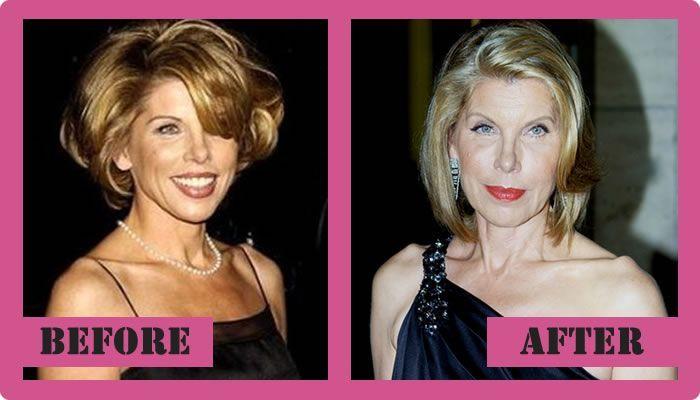 Christine Baranski Nose Job Plastic Surgery
