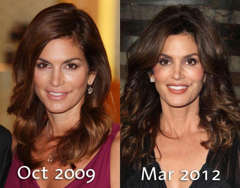 Cindy Sampson Nose Job Plastic Surgery
