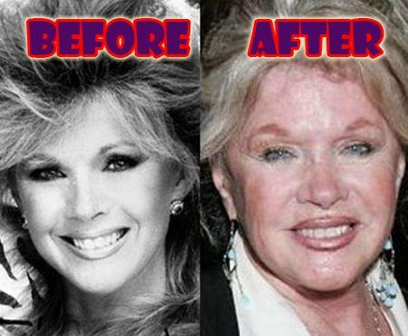 Connie Stevens Lips Plastic Surgery