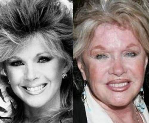Connie Stevens Nose Job Plastic Surgery