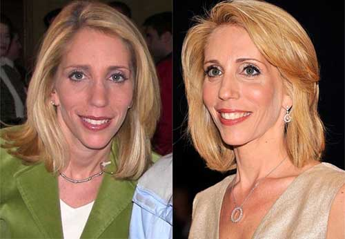 Dana Bash Nose Job Plastic Surgery
