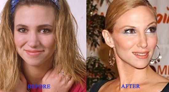Debbie Gibson Nose Job Plastic Surgery