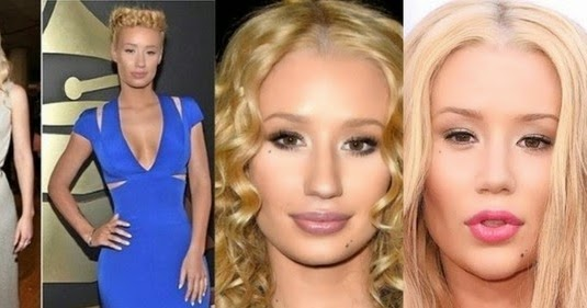 Dianna Russini Nose Job Plastic Surgery