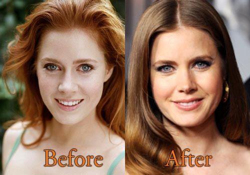 Elizabeth Turner Nose Job Plastic Surgery