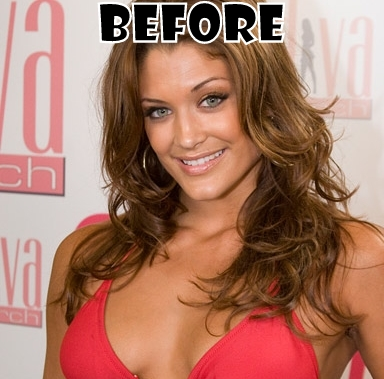 Eve Torres Nose Job Plastic Surgery