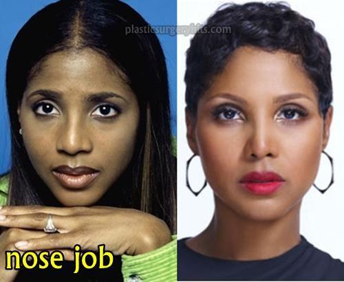 Gabrielle Dennis Nose Job Plastic Surgery