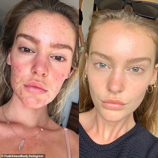 Georgia Gibbs Lips Plastic Surgery