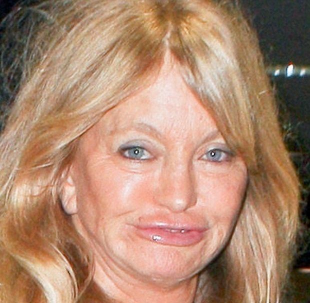 Goldie Hawn Lips Plastic Surgery