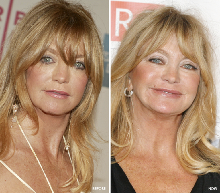 Goldie Hawn Nose Job Plastic Surgery