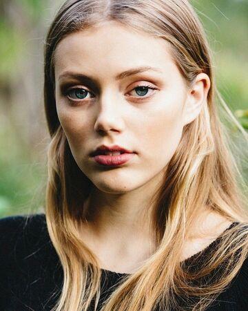 Grace Van Dien Botox Plastic Surgery