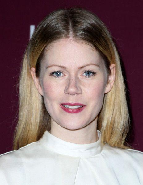 Hanna Alström Lips Plastic Surgery
