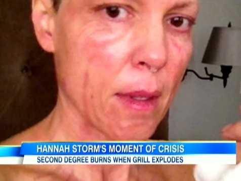 Hannah Storm Botox Plastic Surgery
