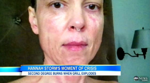 Hannah Storm Lips Plastic Surgery