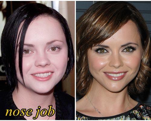 Hannah Storm Nose Job Plastic Surgery