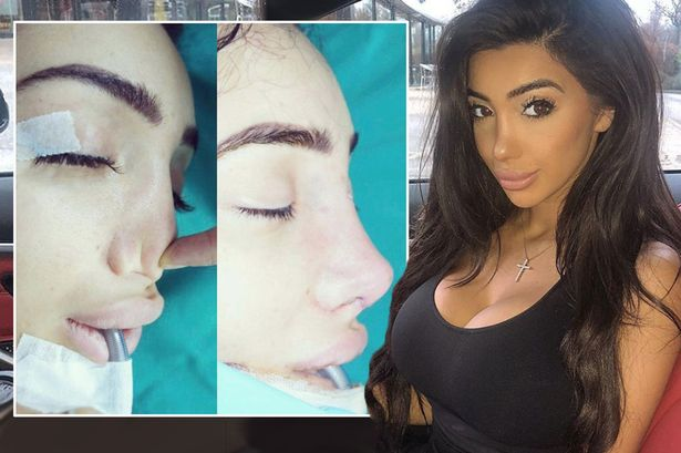 Harriet Dyer Nose Job Plastic Surgery