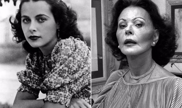 Hedy Lamarr Nose Job Plastic Surgery
