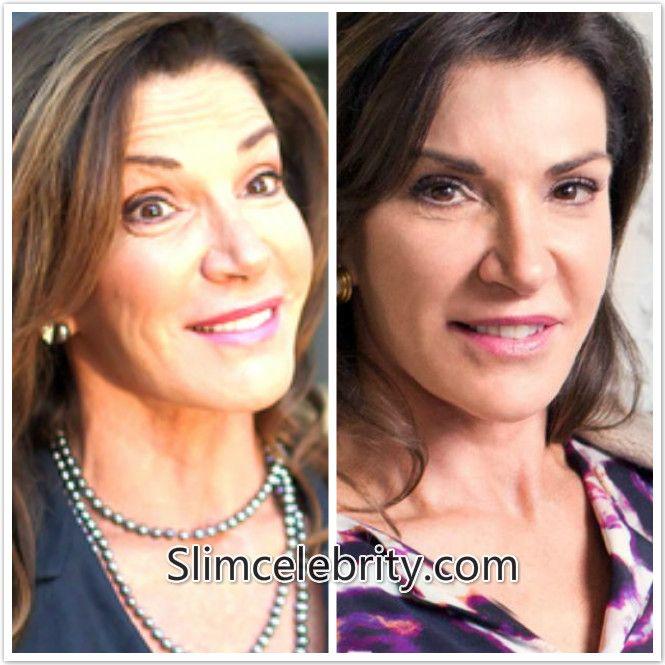 Hilary Farr Nose Job Plastic Surgery