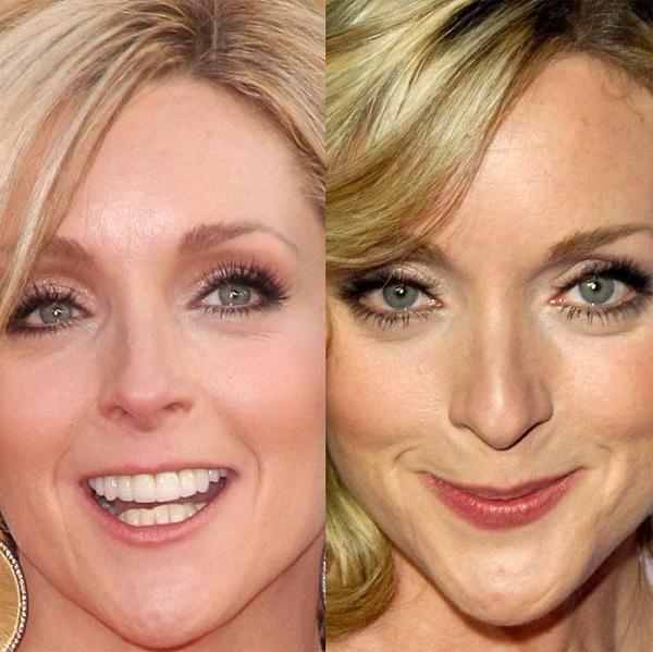 Jane Krakowski Lips Plastic Surgery