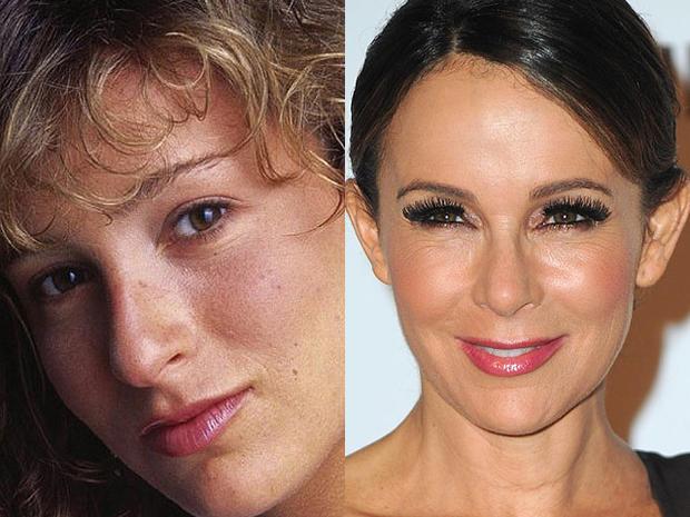 Jennifer Grey Lips Plastic Surgery