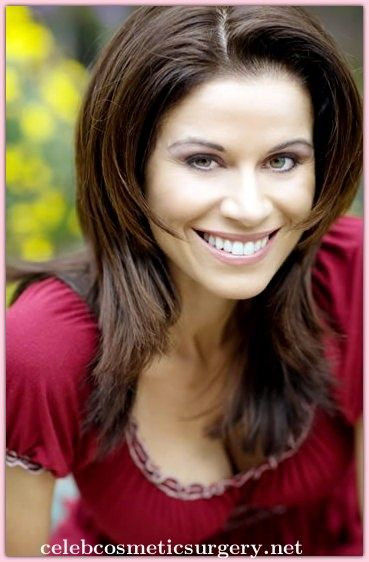 Jennifer Taylor Nose Job Plastic Surgery