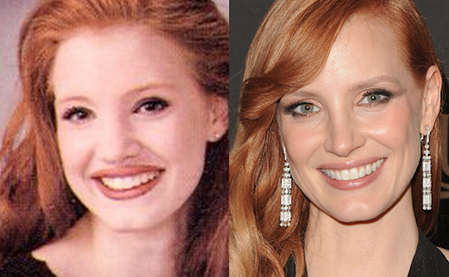 Jessica Green Nose Job Plastic Surgery