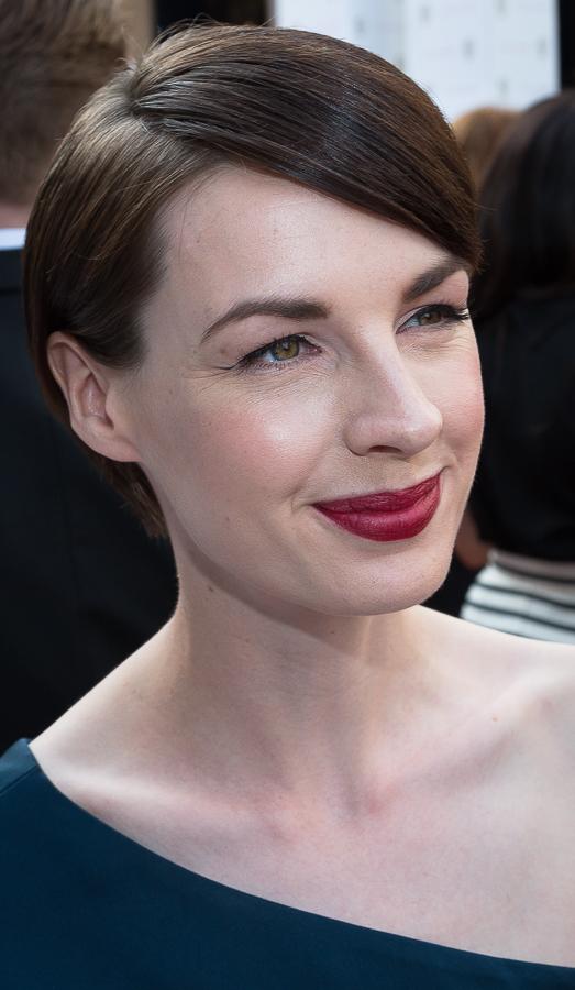 Jessica Raine Botox Plastic Surgery