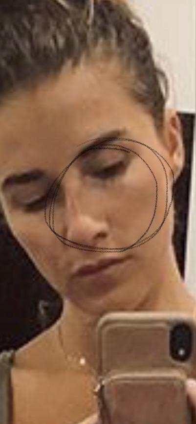 Jessie James Decker Nose Job Plastic Surgery
