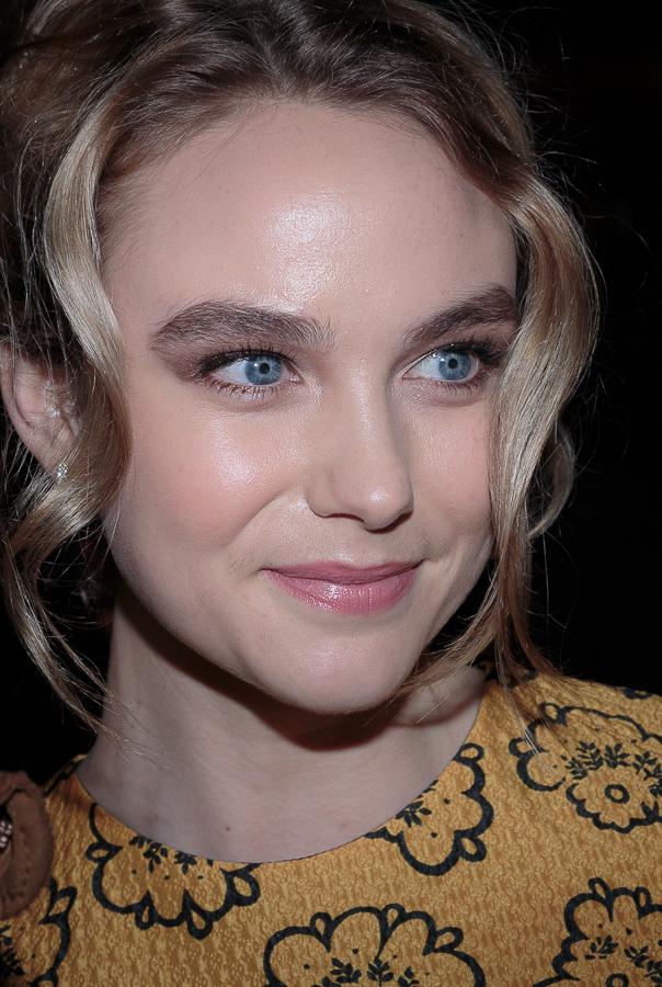 Joanna Vanderham Botox Plastic Surgery