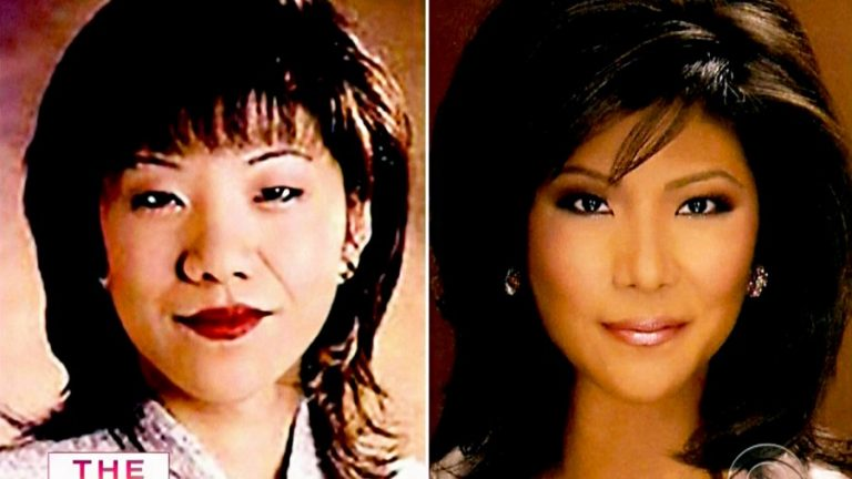 Julie Chen Lips Plastic Surgery