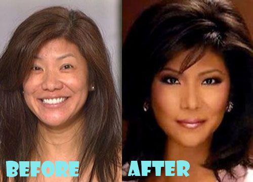 Julie Chen Nose Job Plastic Surgery