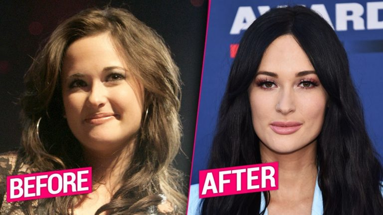 Kacey Musgraves Lips Plastic Surgery