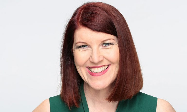 Kate Flannery Lips Plastic Surgery