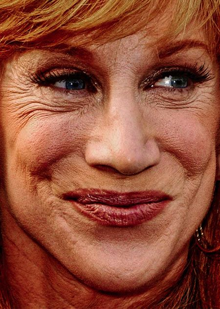 Kathy Griffin Lips Plastic Surgery