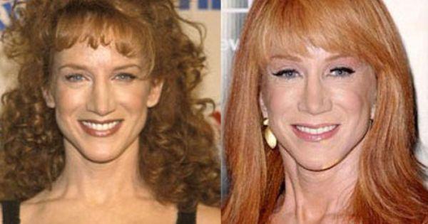 Kathy Griffin Nose Job Plastic Surgery