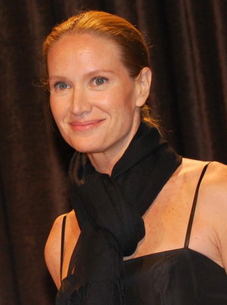 Kelly Lynch Botox Plastic Surgery